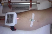 Laserinfusion